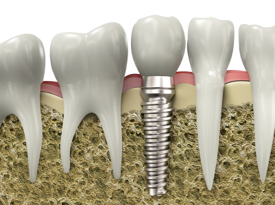 guided implant